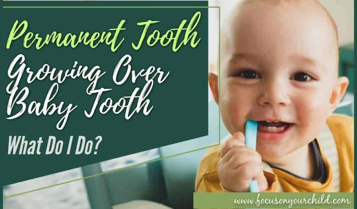 Permanent Tooth Growing Over Baby Tooth – What Do I Do